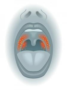 Bei der akuten Mandelentzündung dringen Bakterien oder Viren in den Rachenbereich ein. Die für die Erkrankung typischen Symptome treten auf.